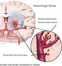 hemorrhagic_stroke.jpg